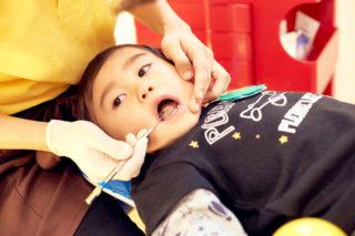 口の中の健康診断